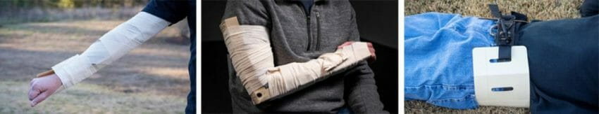The RISETM (Rigid Immobilization System for Extremities) remote medical aid, survival gear Outdoors News